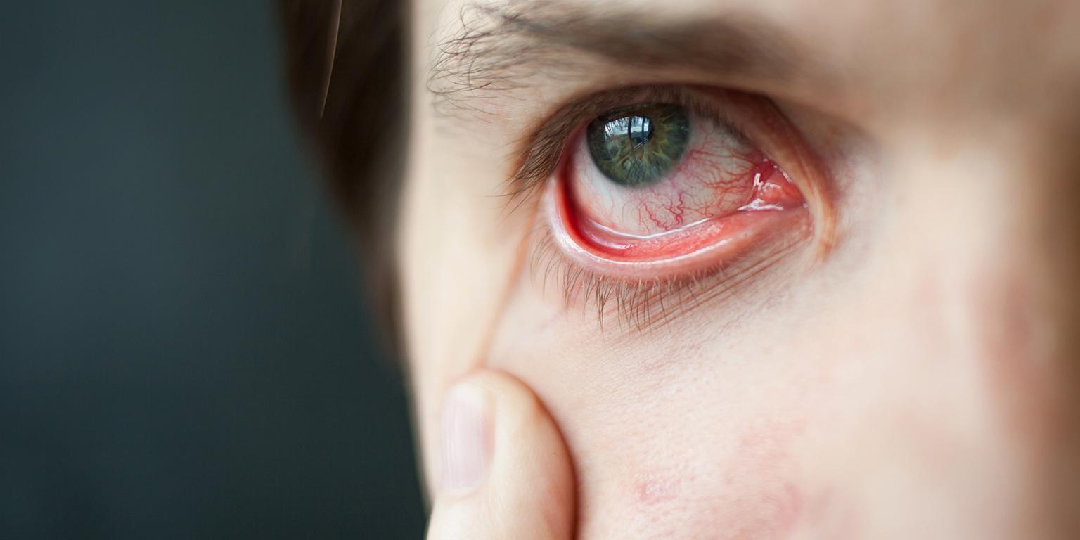Droge ogen monitoren, voor een beter chirurgisch resultaat