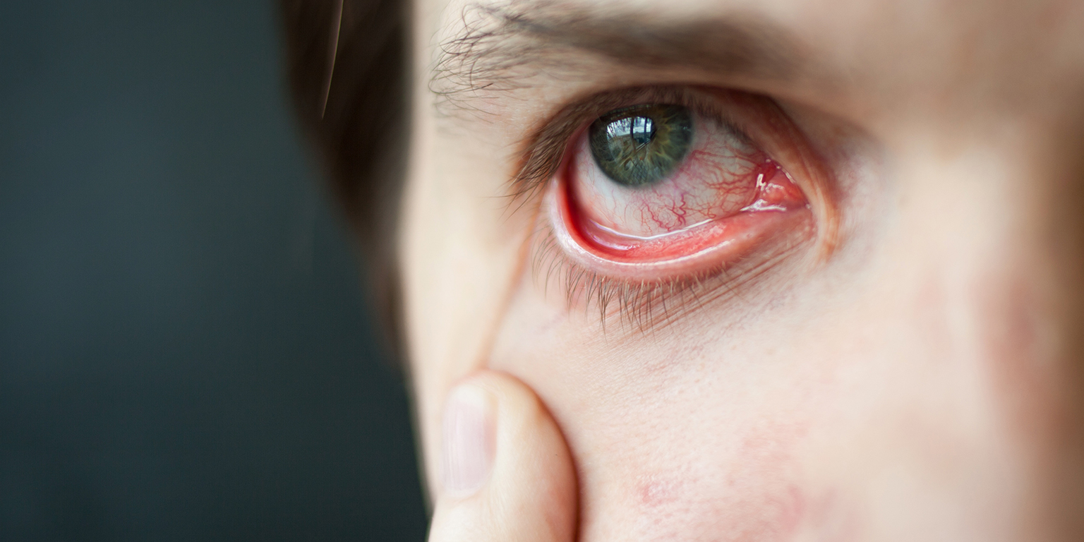 Surveiller la sécheresse oculaire peut améliorer le résultat chirurgical