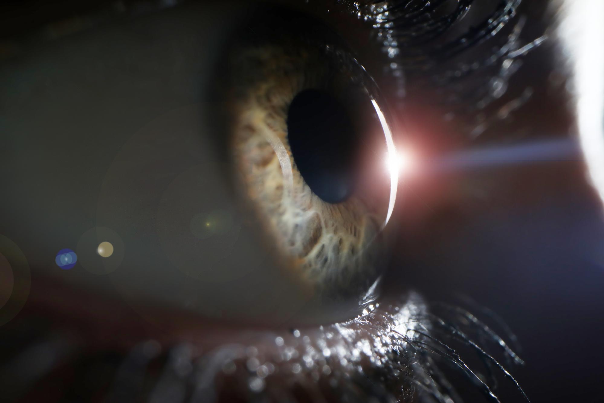 De rol van CoQ10 bij de behandeling van glaucoom